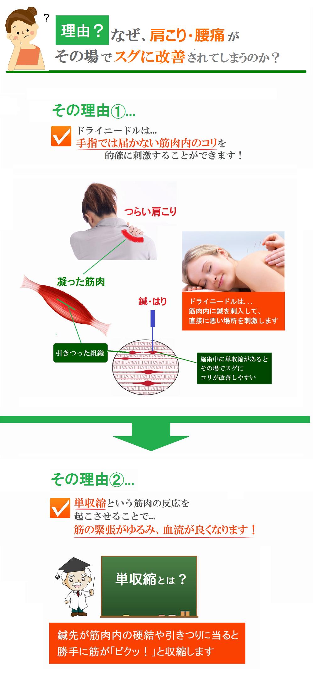 ドライニードル臨床研究会-単収縮